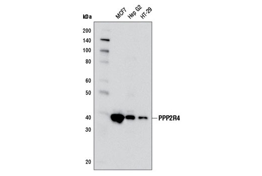Western blot analysis of extracts from MCF7, Hep G2, and HT-29 cells using PPP2R4 (5G3) Mouse mAb.