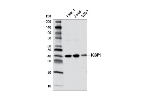 Western blot analysis of extracts from various cell lines using IGBP1 (5F6) Mouse mAb.