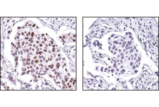 Immunohistochemical analysis of paraffin-embedded human breast carcinoma, using Phospho-Cyclin E1 (Thr62) Antibody in the presence of control peptide (left) or antigen-specific peptide (right).