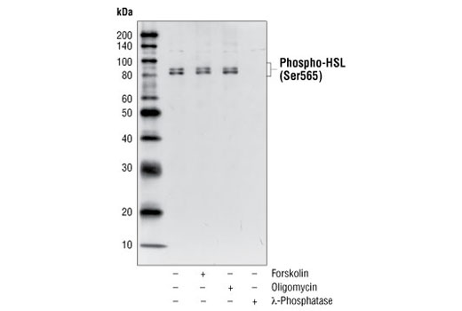 Western blot analysis of extracts from differentiated 3T3-L1 cells treated with forskolin, oligomycin or lambda protein phosphatase, using Phospho-HSL (Ser565) Antibody.