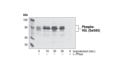 Western blot analysis of extracts from differentiated 3T3-L1 cells treated with isoproterenol or lambda protein phosphatase, using Phospho-HSL (Ser563) Antibody.