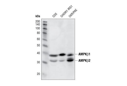 Western blot analysis of cell lysates from various cell lines using AMPKβ 1/2(57C12) Rabbit mAb.