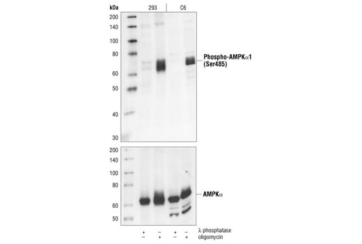 Western blot analysis of extracts from HEK293 and C6 cells, λ phosphatase-treated or oligomycin-treated, using Phospho-AMPKα1 (Ser485) Antibody (upper) or AMPKα Antibody #2532 (lower).