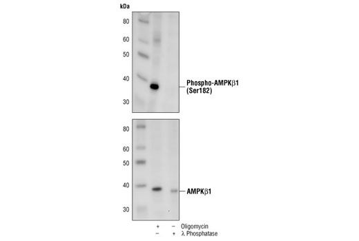 Western blot analysis of extracts from oligomycin treated C6 cells or C6 cell lysate treated with λ phosphatase, using Phospho-AMPKβ1 (Ser182) Antibody (upper) and AMPKβ1 Antibody #4182 (lower).