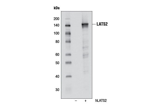 Western blot analysis of extracts from HeLa cells, untransfected (-) or transfected with human LATS2 (+), using LATS2 (D83D6) Rabbit mAb.