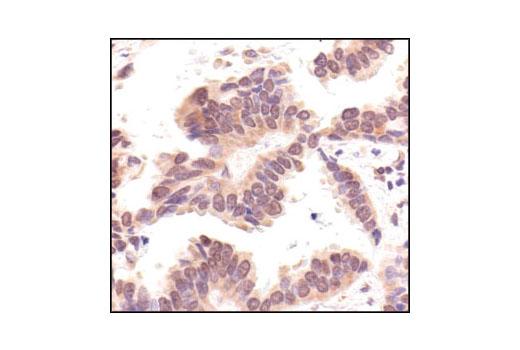 Immunohistochemical analysis of paraffin-embedded human lung carcinoma, using Myt1 Antibody.