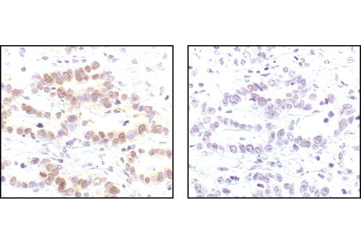 Immunohistochemical analysis of paraffin-embedded human colon carcinoma, using Myt1 Antibody in the presence of control peptide (left) or antigen specific peptide (right).