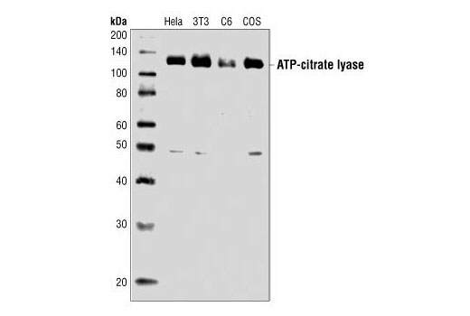 Western blot analysis of extracts from HeLa, NIH/3T3, C6 and COS cells, using ATP-Citrate Lyase Antibody.
