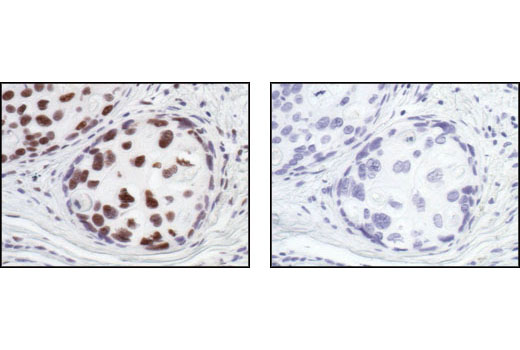 Immunohistochemical analysis of paraffin-embedded human breast carcinoma, using HSF1 Antibody in the presence of control peptide (left) or antigen-specific peptide (right).