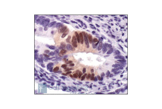 Immunohistochemical analysis of paraffin-embedded human colon carcinoma, using Phospho-p44/42 MAPK (Erk1/2) (Thr202/Tyr204) (20G11) Rabbit mAb.