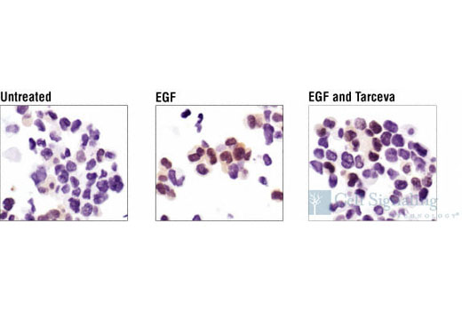 Immunohistochemical analysis of MDA-MB-453 cells, untreated, EGF-treated or EGF/Erlotinib-treated, using Phospho-p44/42 MAPK (Erk1/2) (Thr202/Tyr204) (20G11) Rabbit mAb.