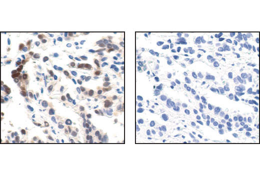 Immunohistochemical analysis of paraffin-embedded human lung carcinoma, untreated or λ phosphatase-treated (right), using Phospho-p44/42 MAPK (Erk1/2) (Thr202/Tyr204) (20G11) Rabbit mAb.