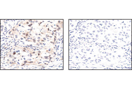 Immunohistochemical analysis of paraffin-embedded human prostate tumor, using Phospho-p44/42 MAPK (Erk1/2) (Thr202/Tyr204) (20G11) Rabbit mAb (left) or the same antibody pre-incubated with Phospho-p44/42 MAPK (Erk1/2) (Thr202/Tyr204) Blocking Peptide #1150 (right).