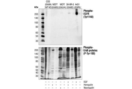 Western blot analysis of various cell lysates containing activated EGFR, ErbB2, ErbB3 and ErbB4 proteins, using Phospho-EGF Receptor (Tyr1148) Antibody (upper) or Phospho-Tyrosine mAb (P-Tyr-100) #9411 (lower).
