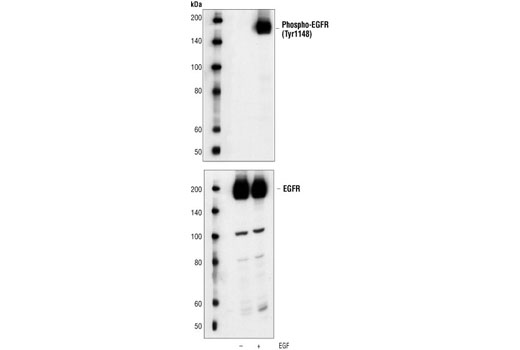 Western blot analysis of extracts from A431 cells, untreated or EGF-stimulated, using Phospho-EGF Receptor (Tyr1148) Antibody (upper) or EGF Receptor Antibody #2232 (lower).