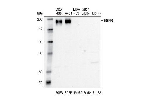 Monoclonal Antibody - EGF Receptor (15F8) Rabbit mAb - Western Blotting, UniProt ID P00533, Entrez ID 1956 #4405