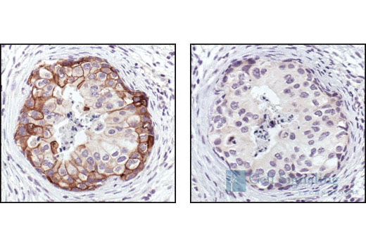 Immunohistochemical analysis of paraffin-embedded human breast carcinoma, untreated (left) or calf-intestinal phosphatase (CIP) treated (right), using Phospho-EGF Receptor (Tyr1173) (53A5) Rabbit mAb.