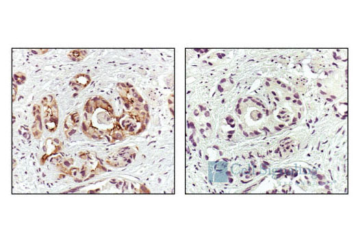 Immunohistochemical analysis of paraffin-embedded human prostate carcinoma, using Phospho-EGF Receptor (Tyr1173)(53A5) Rabbit mAb (left) or the same antibody preincubated with Phospho-EGF Receptor (Tyr1173) Blocking Peptide (#1175) (right).