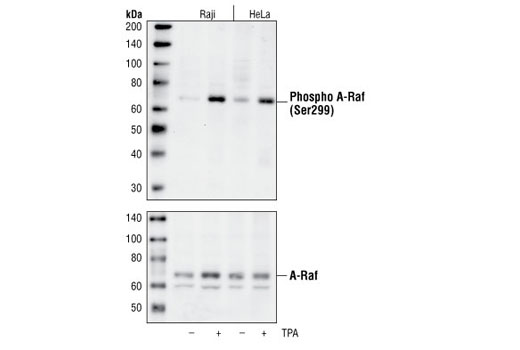 Western blot analysis of extracts from Raji and HeLa cells, untreated or TPA-treated (30 minutes), using Phospho-A-Raf (Ser299) Antibody (upper) or A-Raf Antibody, #4432 (lower).