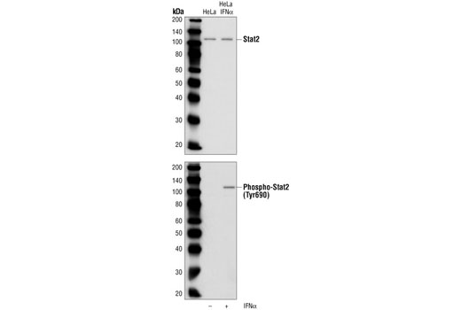 Western blot analysis of extracts from HeLa cells, untreated or IFN-α-treated (100 ng/ml, 15 minutes), using Stat2 Antibody (upper) or Phospho-Stat2 (Tyr690) Antibody (lower).