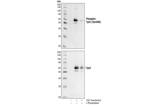 Western blot analysis of extracts from COS cells, untransfected or transfected with rat Tpl2 , using Phospho-Tpl2 (Ser400) Antibody (upper) and Tpl2 Antibody #4492 (lower). In lane 3, Tpl2 transfected COS cell lysate was treated with λ phosphatase to demonstrate the phospho-specificity of Phospho-Tpl2 (Ser400) Antibody.
