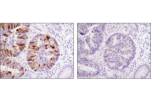 Immunohistochemical analysis of paraffin-embedded human colon carcinoma using PLK1 (208G4) Rabbit mAb in the presence of control peptide (left) or antigen-specific peptide (right).