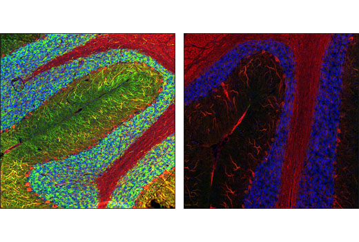 Polyclonal Antibody Immunofluorescence Frozen MAP2