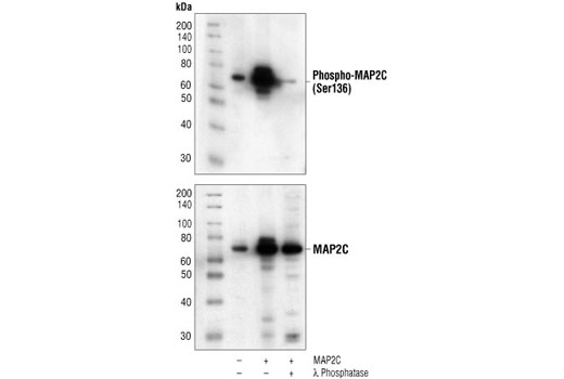 Western blot analysis of extracts from COS cells, untransfected (lane 1) or MAP2C-transfected (lanes 2,3), using Phospho-MAP2 (Ser136) Antibody (upper) or MAP2 Antibody #4542 (lower). In lane 3, the lysate was treated with lamda phosphatase to demonstrate phospho-specificity of the antibody. (Human MAP2C construct is a generous gift from Dr. B. Shafit-Zagardo, Dept. of Pathology, Albert Einstein College of Medicine, Bronx, NY.)