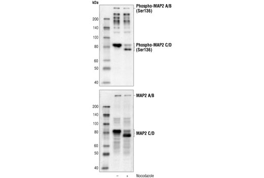 Western blot analysis of extracts from PC12 cells, untreated or nocodazole-treated, using Phospho-MAP2 (Ser136) Antibody (upper) or MAP2 Antibody #4542 (lower).