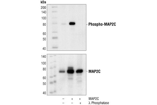Western blot analysis of extracts from COS cells, untransfected (lane 1), or MAP2C transfected (lanes 2,3), using Phospho-MAP2 (Thr1620/1623) Antibody (upper) or MAP2 Antibody #4542 (lower). In lane 3, the lysate was treated with lamda phosphatase to demonstrate phospho-specificity of the antibody. (Human MAP2C construct is a generous gift from Dr. B. Shafit-Zagardo, Dept. of Pathology, Albert Einstein College of Medicine, Bronx, NY.)