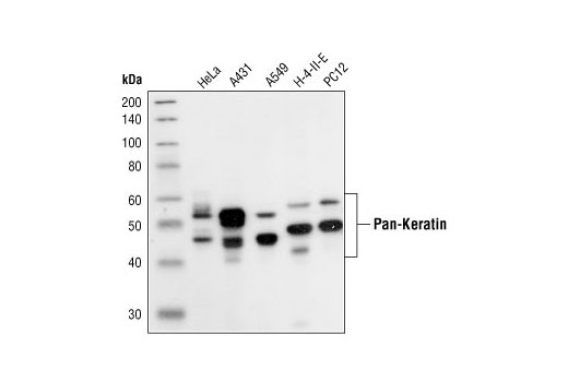 Western blot analysis of extracts from various cell lines, using Pan-Keratin (C11) Mouse mAb.