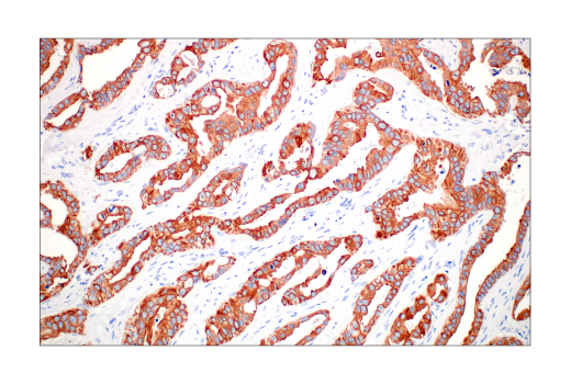 Image 64: Human Immune Cell Phenotyping IHC Antibody Sampler Kit