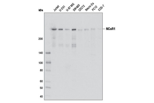 Polyclonal Antibody - NCoR1 Antibody - Western Blotting, UniProt ID O75376, Entrez ID 9611 #5948, Chromatin Regulation / Acetylation