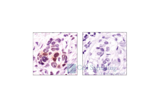 Immunohistochemistry of paraffin-embedded breast carcinoma, using Phospho-p38 MAPK (Thr180/Tyr182) (12F8) Rabbit mAb (left) or the same antibody preincubated with antigen phospho-peptide (right).