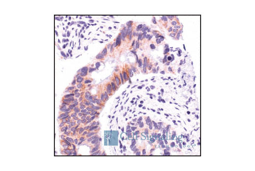 Immunohistochemical analysis of paraffin-embedded human colon carcinoma, using AIF Antibody.