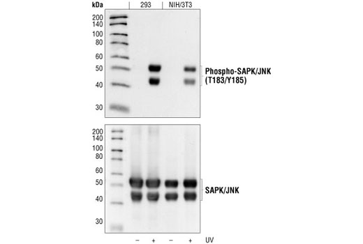 Western blot analysis of extracts from 293 cells and NIH/3T3 cells, untreated or UV-treated, using Phospho-SAPK/JNK (Thr183/Tyr185) (98F2) Rabbit mAb (upper) or SAPK/JNK (56G8) Rabbit mAb (lower).