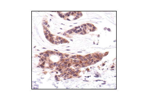 Immunohistochemical analysis of paraffin-embedded human breast carcinoma, showing cytoplasmic localization using MEK1/2 (L38C12) Mouse mAb.