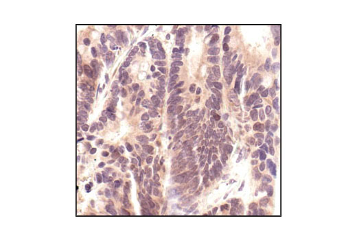 Immunohistochemical analysis of paraffin-embedded human colon carcinoma, using p44/42 MAPK (Erk1/2) (137F5) Rabbit mAb.