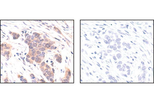 Immunohistochemical analysis of paraffin-embedded human breast carcinoma, using p44/42 MAPK (Erk1/2) (137F5) Rabbit mAb in the presence of control peptide (left) or #1240 p44/42 MAPK (Erk1/2) Blocking Peptide (#4695 Specific) (right).