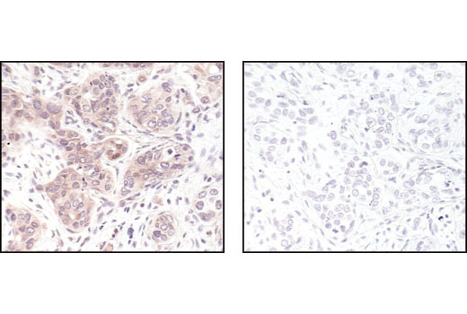 Immunohistochemical analysis of paraffin-embedded human breast carcinoma, using p44/42 MAP Kinase (L34F12) Mouse mAb in the presence of control peptide (left) or p44/42 MAP Kinase Blocking Peptide (#4696 Specific) #1245 (right).