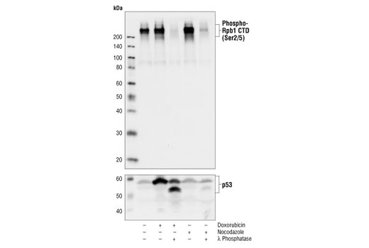 Western blot analysis of extracts from MCF-7 cells, untreated or treated with doxorubicin (0.5 μM, 36 h), doxorubicin followed by λ Phosphatase NEB#P0753 (10,000 Units/ml, 1 h), nocodazole (50 ng/ml, 36 h) or nocodazole followed by λ Phosphatase, using Phospho-Rpb1 CTD (Ser2/5) Antibody (upper) or p53 Antibody #9282 (lower).