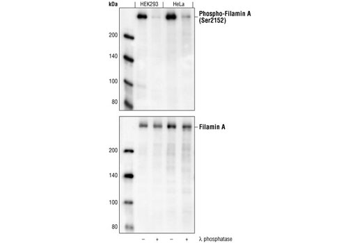 Western blot analysis of extracts from HEK293 and HeLa cells, untreated or lamda phosphatase-treated, using Phospho-Filamin A (Ser2152) Antibody (upper) and Filamin A Antibody #4762 (lower).