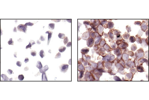 Immunohistochemical analysis of paraffin-embedded MDA-MB-453 cells, untreated (left) or neuregulin-treated (right), using Phospho-HER3/ErbB3 (Tyr1289)(21D3) Rabbit mAb.