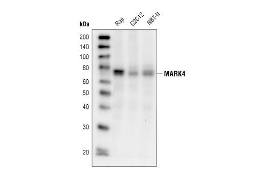 Polyclonal Antibody Tau-Protein Kinase Activity