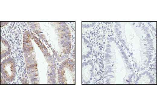 Immunohistochemical analysis of paraffin-embedded human adenoma of the large intestine, using COX IV Antibody in the presence of control peptide (left) or antigen-specific peptide #1034 (right).