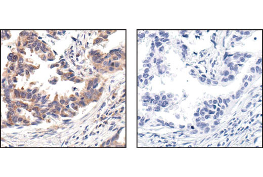 Immunohistochemical analysis of paraffin-embedded human lung carcinoma, using Phospho-S6 Ribosomal Protein (Ser235/236) (91B2) Rabbit mAb in the presence of control peptide (left) or Phospho-S6 Ribosomal Protein (Ser235/236) Blocking Peptide #1220 (right).