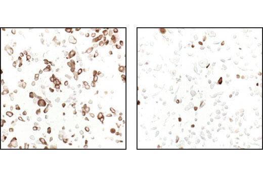 Immunohistochemical analysis of paraffin-embedded LNCaP cells, untreated (left) or rapamycin-treated (right), using Phospho-S6 Ribosomal Protein (Ser235/236) (91B2) Rabbit mAb.