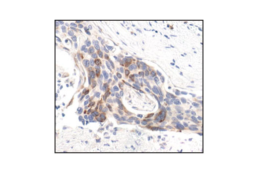 Immunohistochemical analysis of paraffin-embedded human breast carcinoma, using Phospho-S6 Ribosomal Protein (Ser235/236) (91B2) Rabbit mAb.