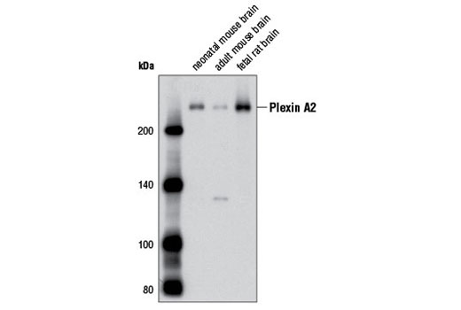 Western blot analysis of extracts from neonatal and adult mouse, and fetal rat brain tissue using Plexin A2 (D44D4) Rabbit mAb.