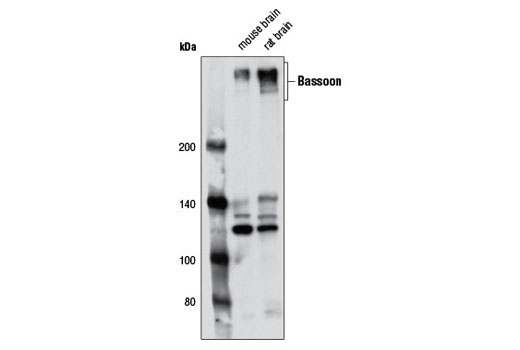 Western Blotting Image 1: Bassoon (D63B6) Rabbit mAb
